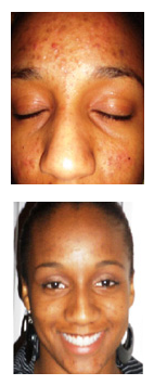Acne cures by Yorhealth